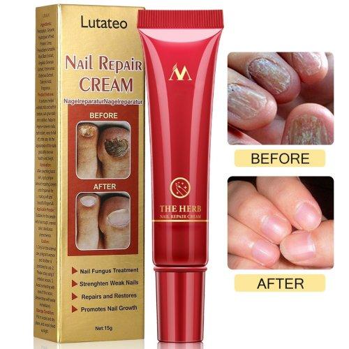 Fungus Stop, Nail Antifungal Treatment, Nail Fungus Treatments, Anti ...